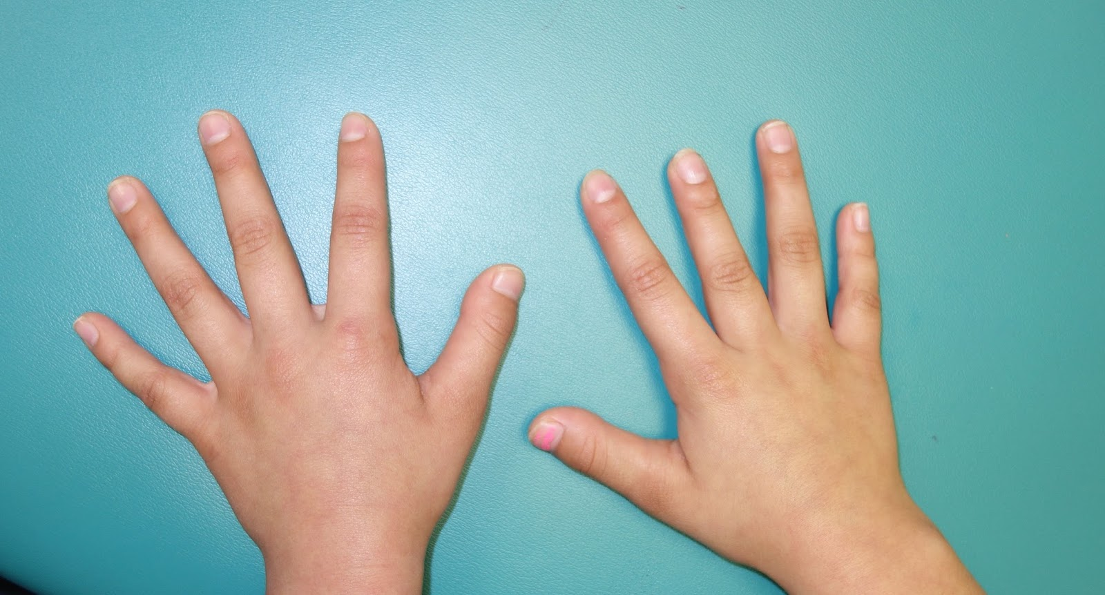 short fingers- brachydactyly | congenital hand and arm differences, Skeleton
