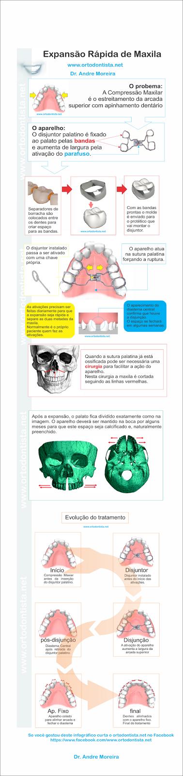 aparelho dentário, aparelho fixo, aparelho ortodontico, diário aparelho dentário, expansor fixo, hirax, hyrax, mordida cruzada, ortodontia,