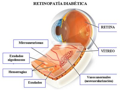 Retinopatia diab�tica