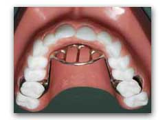 Wheaton Orthodontist: Are you concerned about your child's ...