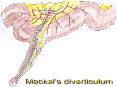 medical videos ppt and lecture notes meckels diverticulum