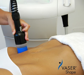 Vaser Shape - Treatment for Non-Surgical Fat Removal