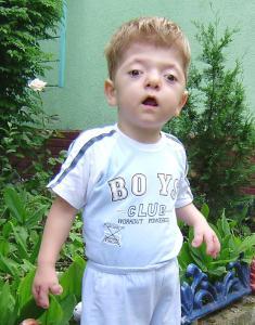 Mild Apert Syndrome   www.pixshark.com - Images Galleries ...