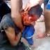 traficante toma varios tiro na cara e fica agonizando