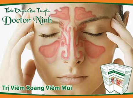 Thuốc trị viêm xoang Doctor Ninh chữa bệnh viêm xoang hiệu quả nhất