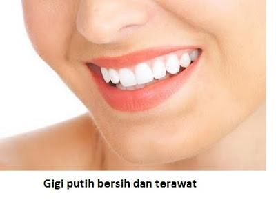 tidak pakai kawat gigi