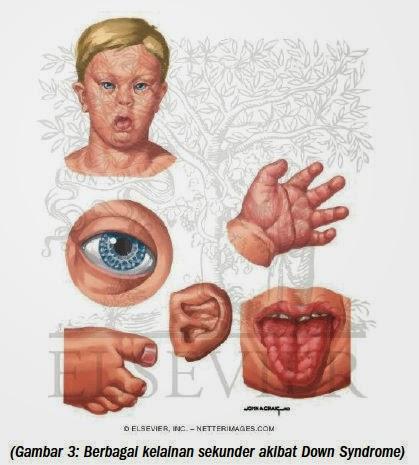 Penyakit Down Syndrom - Lailul Farida