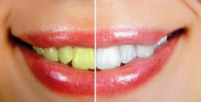 Cara Ampuh Memutihkan Gigi Kuning