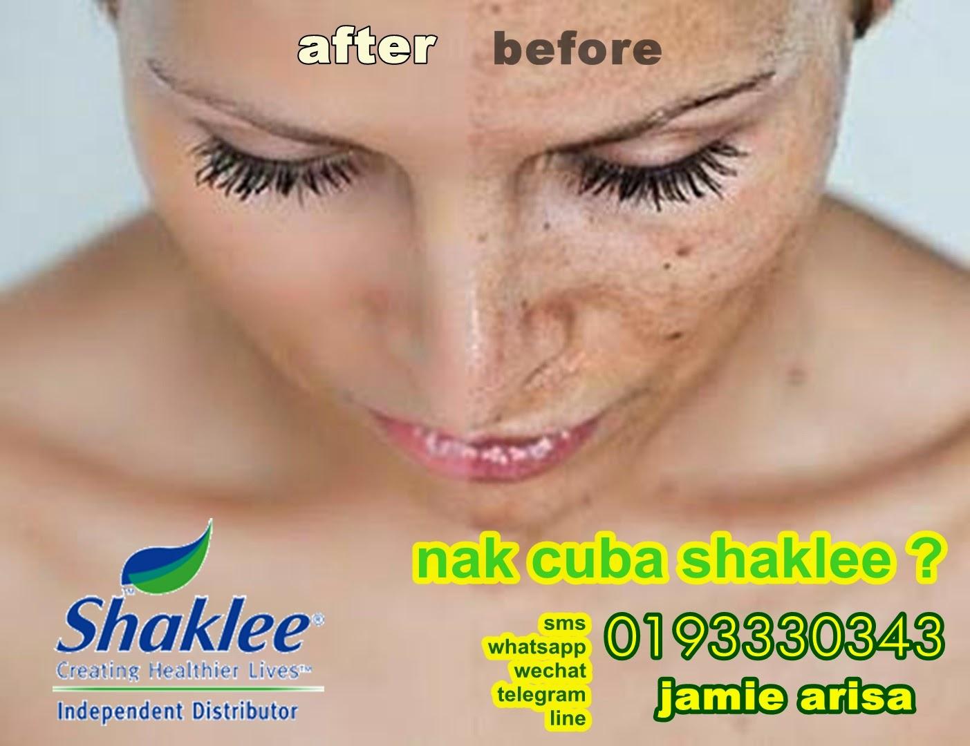 Hubungi Puan Jamie Arisa di 0193330343 untuk set Shaklee untuk hilangkan jeragat dan set-set vitamin lain yang dapat menolong mencantikkan kulit anda