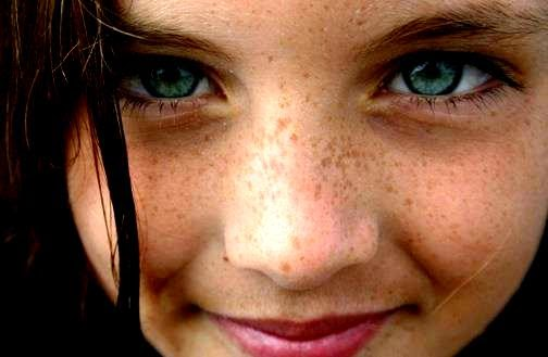 Cara Mengatasi Flek Hitam dan Komedo Pada Wajah