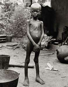 THE BIAFRAN GIRL, VICTIM OF YAKUBU GOWON'S  INDUCED KWASHIOKOR.