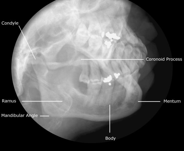 Mandible Radiographic Anatomy | Technology and Techniques in Radiology