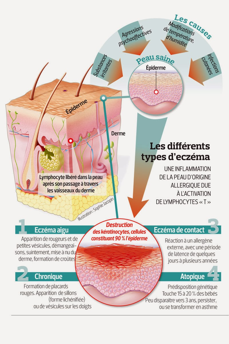 Les differents types d'eczema, aigu, chronique atopique et eczema de contact