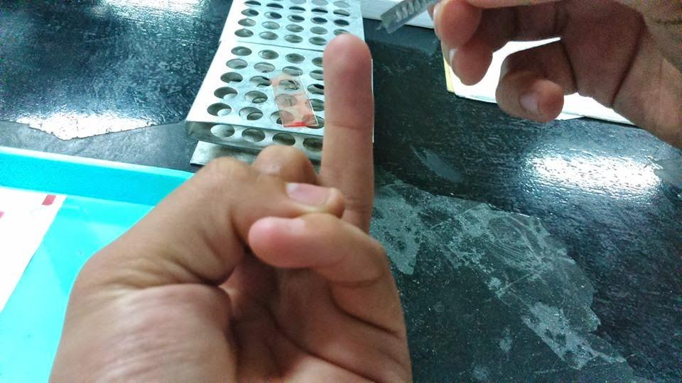te para bajar los niveles de acido urico dolor planta pies acido urico existe algun medicamento para la gota