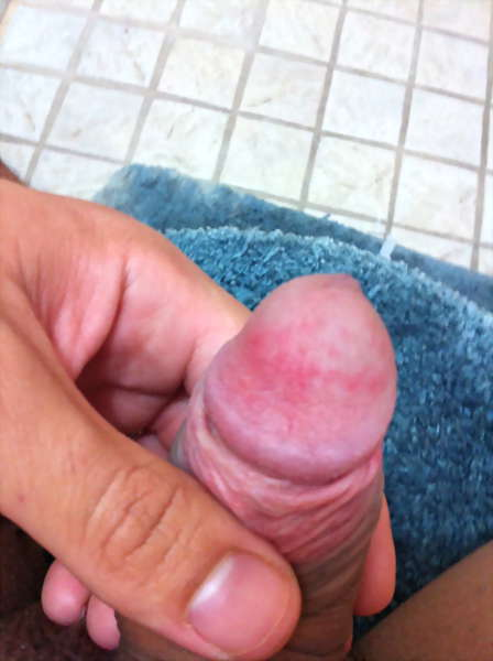 image of pictures of warts on penis