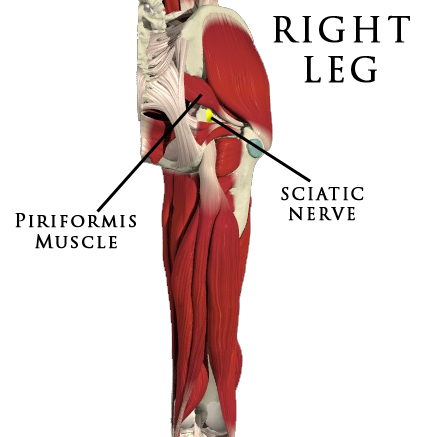 Piriformis Muscle Syndrome Related Keywords & Suggestions - Piriformis ...