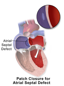 6 Nursing Diagnosis for Atrial Septal Defect