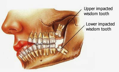 http://www.dentist-india-madurai.com/treatments-wisdom-teeth-removal.html