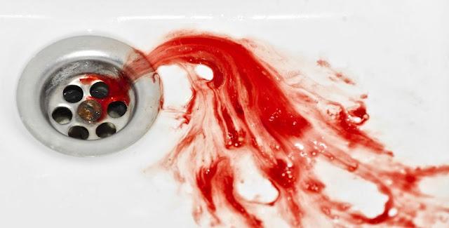 Penyebab, Gejala, Dan Cara Mengatasi Ludah Bercampur Darah