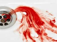 Penyebab, Gejala, Dan Cara Mengatasi Ludah Bercampur Darah Di Pagi Hari