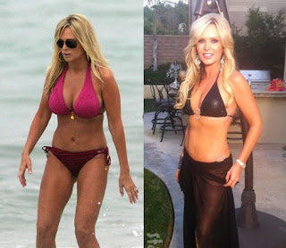 Tamra Barney Breast Enlargement Surgery Pictures