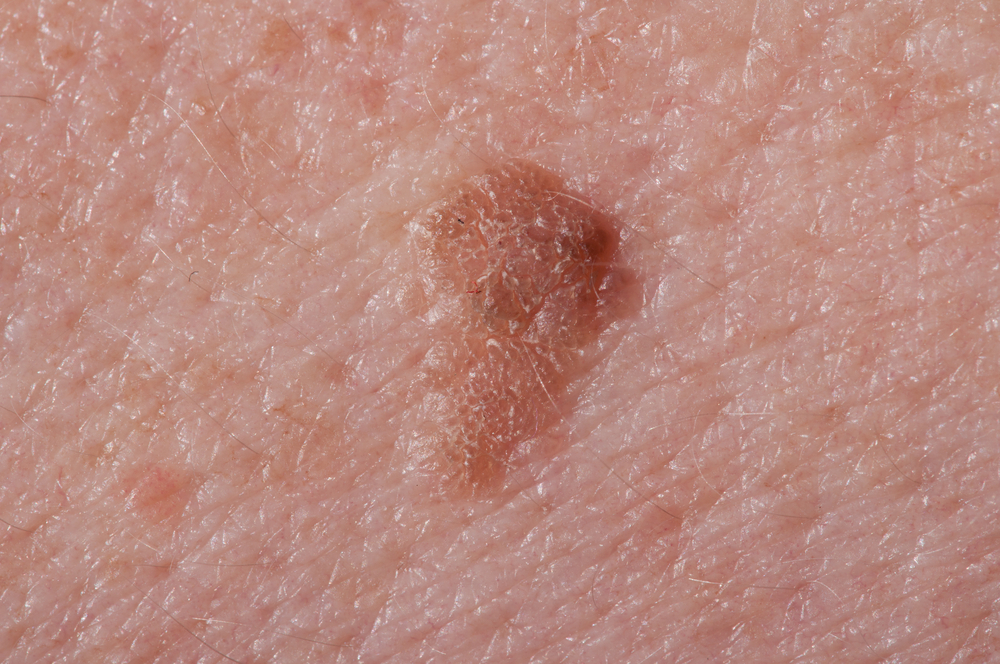 Discolored Skin Patches : 38 Causes, Photos & Treatments