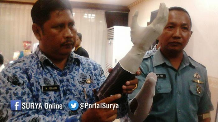 Tentara Korban Granat Pakai Tangan Bionic Pertama di Indonesia