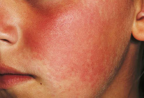 Strep throat rash Signs and Symptoms