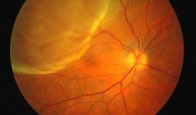 imagen de retina
