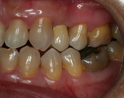 lateral view of teeth after implant restoration