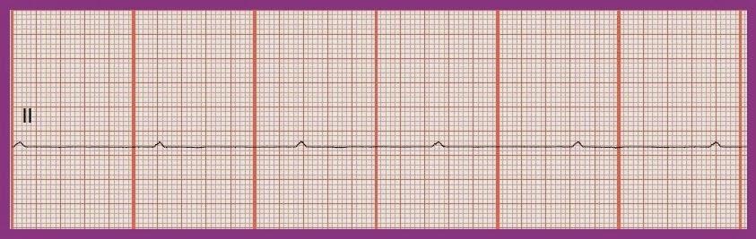P Wave Asystole Float Nurse: Practice ...
