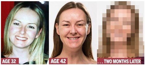 Kesan Suntikan Botox yang Menakjubkan