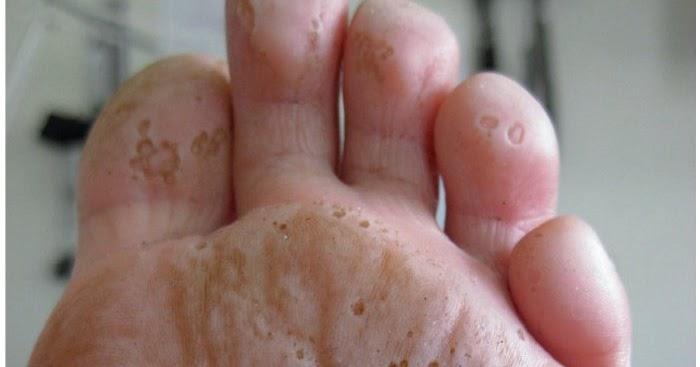 El agujero sobre el dedo del pie del hongo
