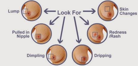Medullary Thyroid Carcinoma: Practice Essentials