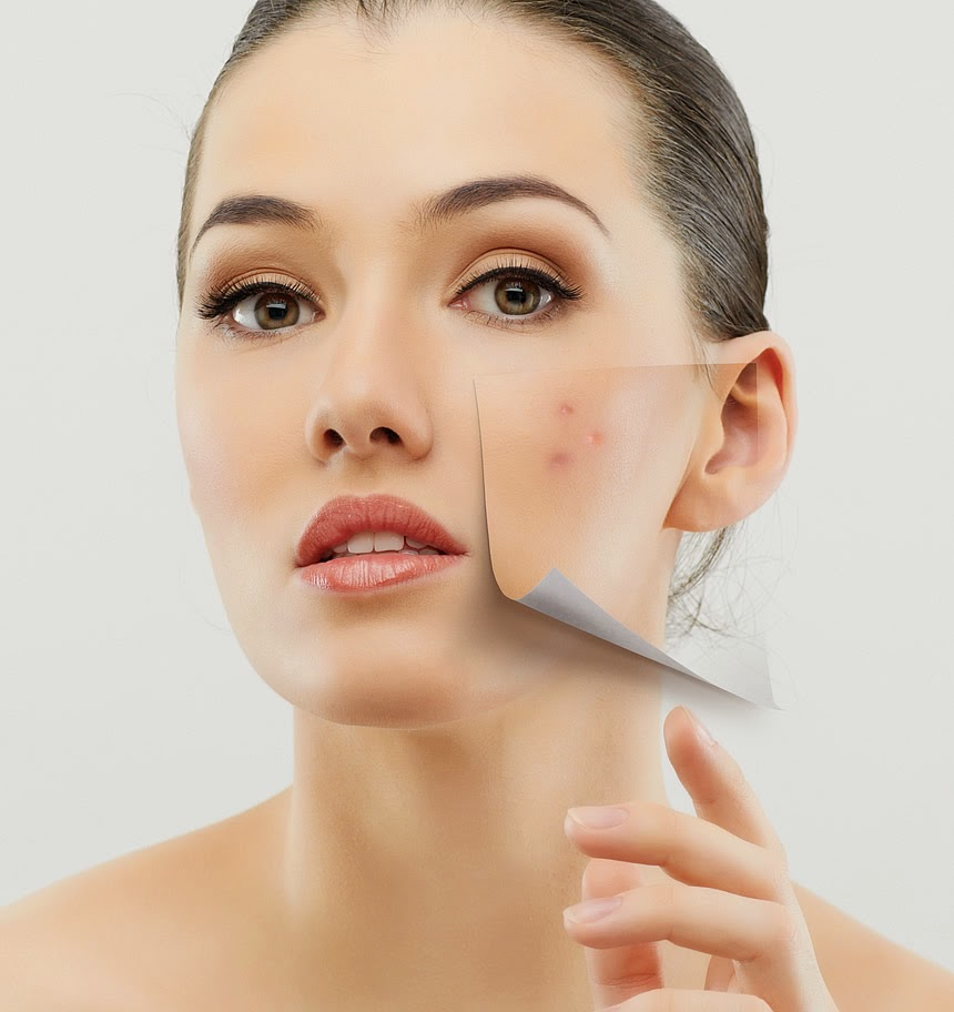 Natural Products To Get Rid Of Pimples