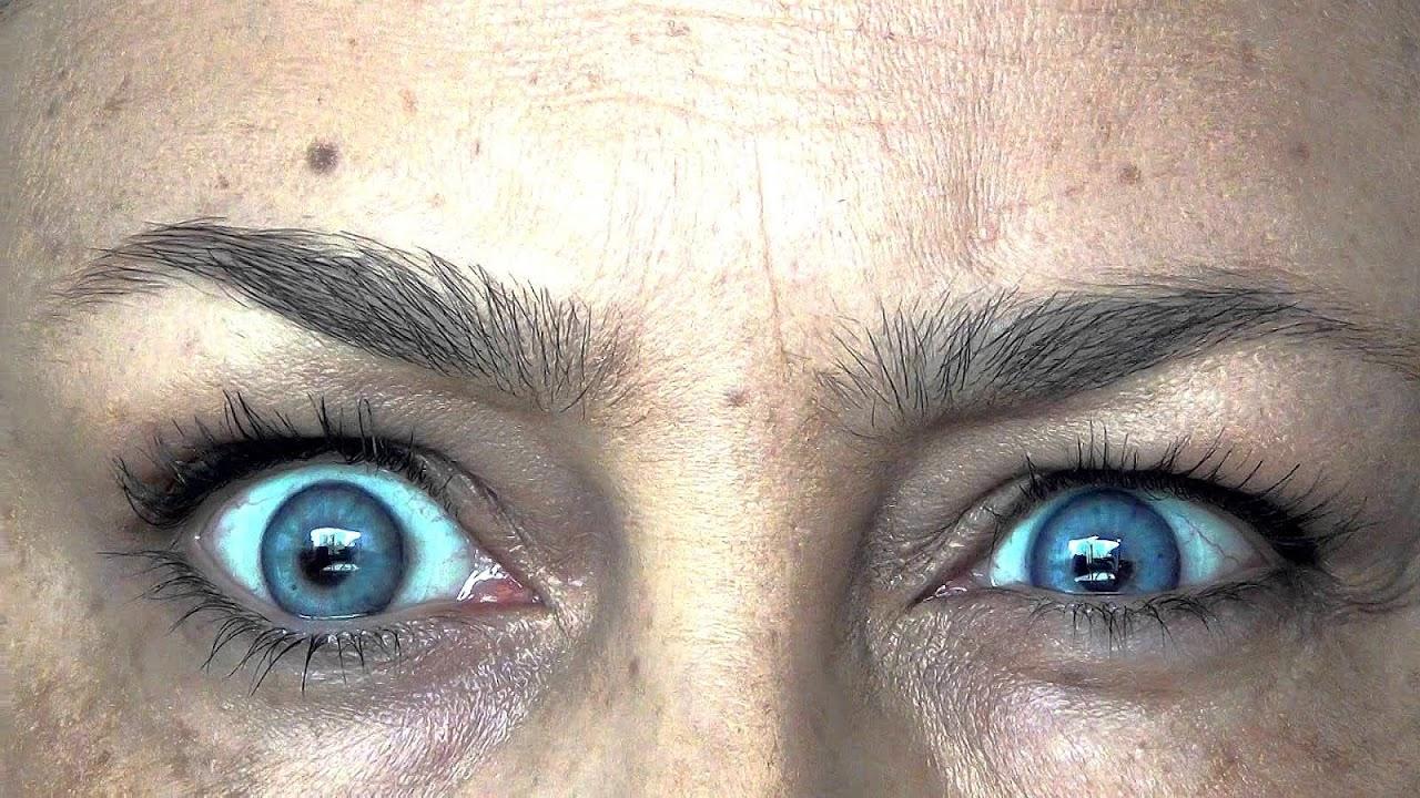 Allergic contact dermatitis Paint