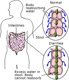 diarrhoea in Faisalabad