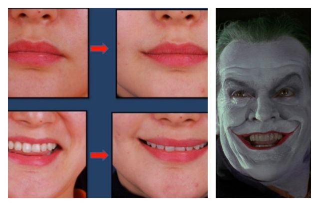 "Surgery to smile as ""The Joker"" becomes the New Asian Fashion"