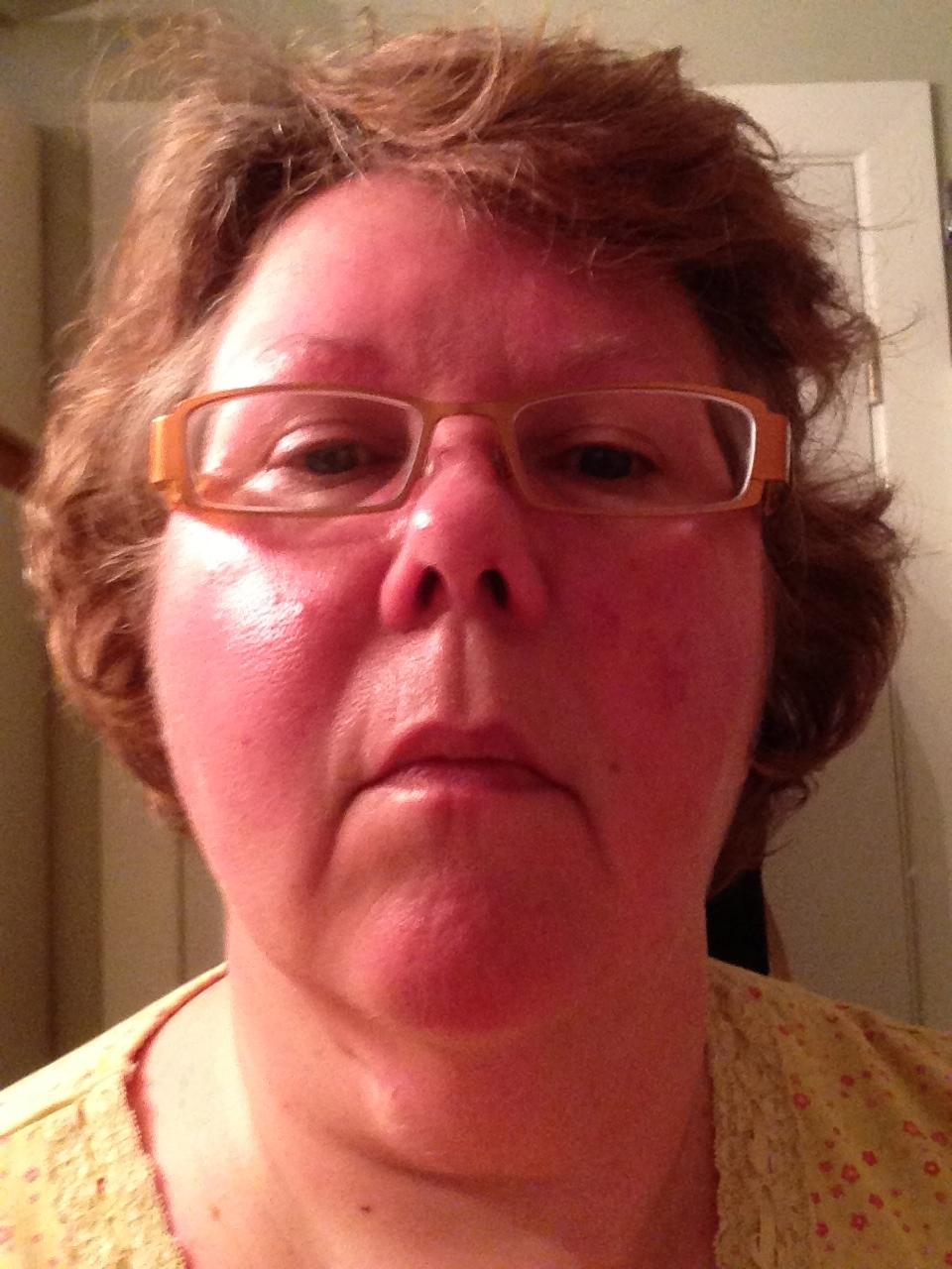 Cialis side effects facial flushing