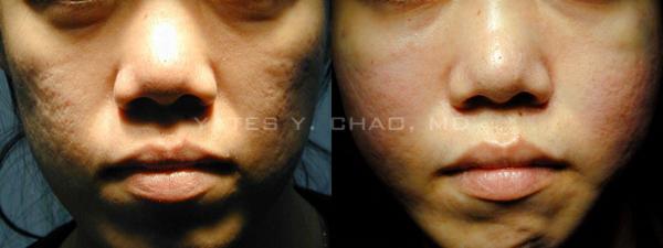 青春痘疤經過自體脂肪移植後的改善, 趙彥宇