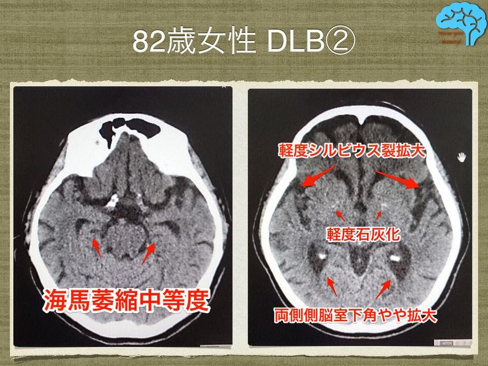 レビー小体型認知症 海馬萎縮あり シルビウス裂拡大あり