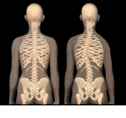 NORMAL vs SCOLIOSIS