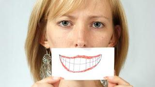 французская улыбка