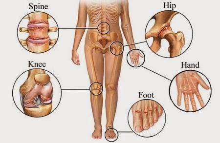 Cara Mengobati Pengapuran Sendi Lutut
