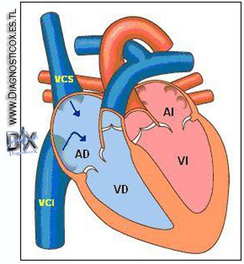 Anatomia y Fisiologia del Sistema Cardiovascular | .