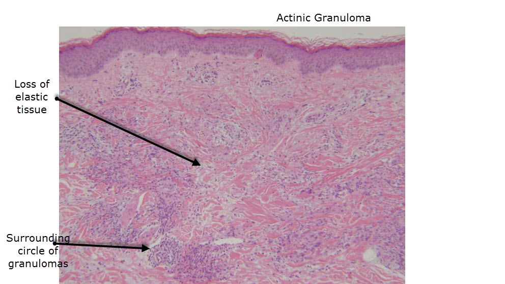 O'Brien's Actinic Granuloma: an unusually extensive ...