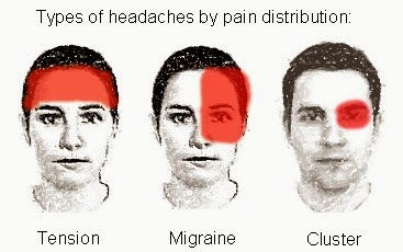 Types of Headaches   Bad Headache