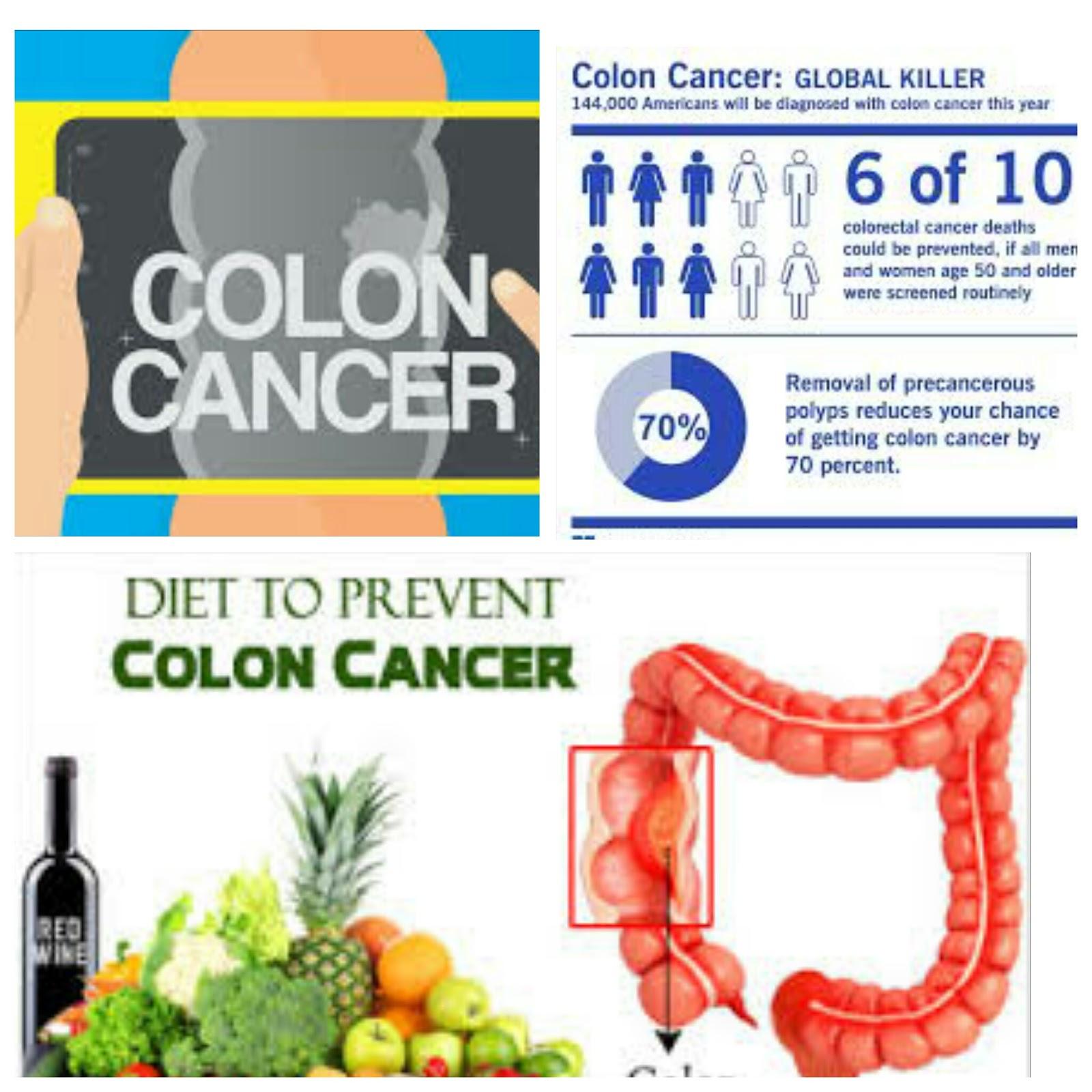Diet to Prevent Colon Cancer