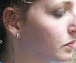 Acne Scarring : Prevent and Treatment