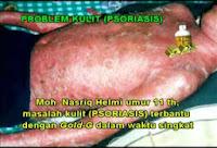 Obat Herbal Psoriasis
